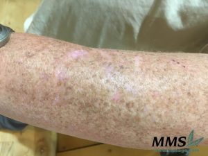 Our volunteer's left arm before the first application of Lanolin Butter.